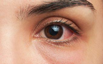 Treating Ocular Allergies